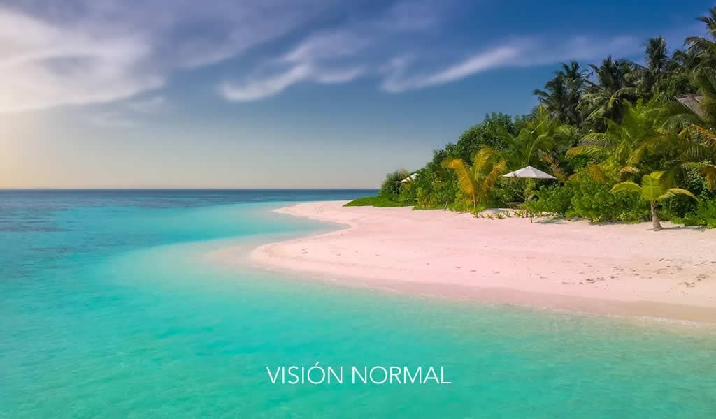 VISTA NORMAL - tratamiento glaucoma